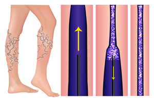 Sclerotherapy Vericose Veins