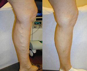 Before and after results of compression socks